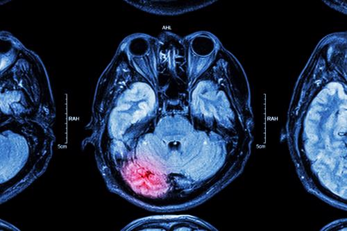 Contact Keith Law Group to learn how we can help with your traumatic brain injury claim.